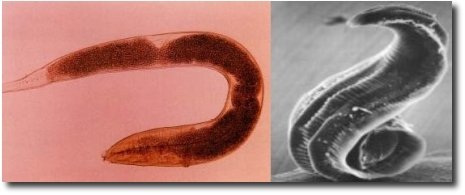 The Different Types of Inner Parasites