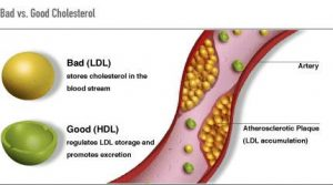 Fighting Bad Cholesterol: Could Possibly Be As Basic As Developing a Extended Transfer
